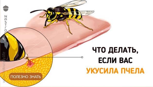 Если вас укусила пчела… Важно знать всем!