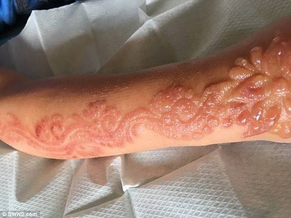 Ребенок получил ужасный химический ожог от татуировки хной. Множественные шрамы могут остаться на всю жизнь!