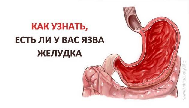 Как узнать, есть ли у вас язва желудка