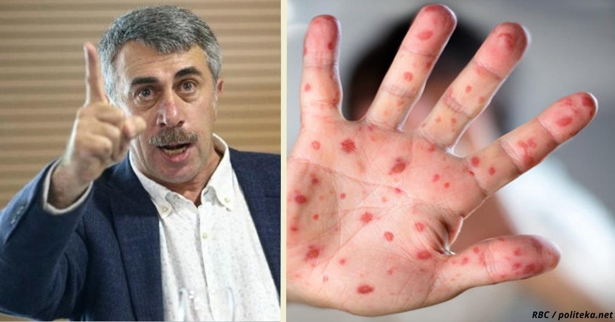 Умрёт каждый 10 й: Доктор Комаровский предупреждает о вспышке новой инфекции