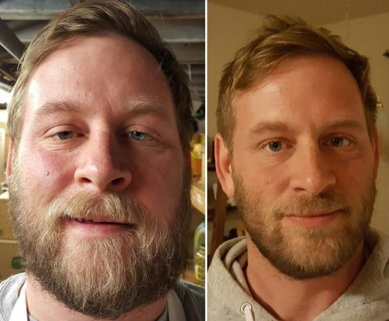 Эти люди просто бросили пить: посмотрите, как они изменились!