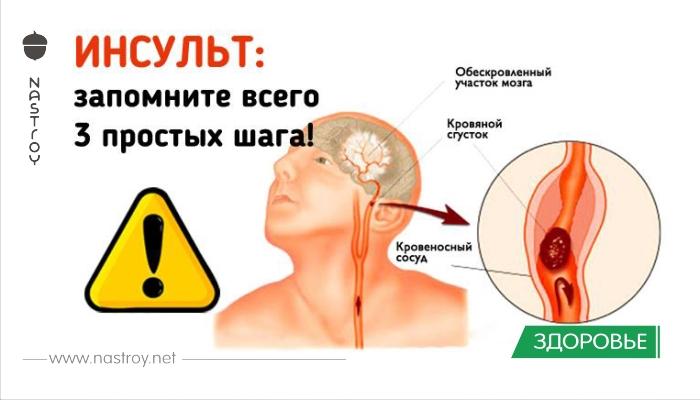 Инсульт: три шага, чтобы спасти жизнь себе или близким
