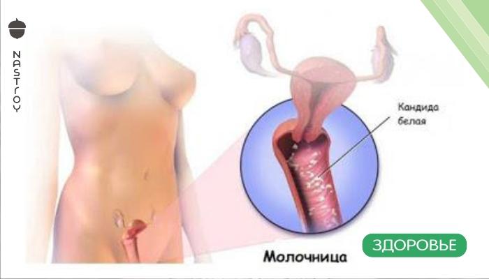 Многие женщины страдают от грибковых инфекций,но вылечиться от них возможно и в домашних условиях!