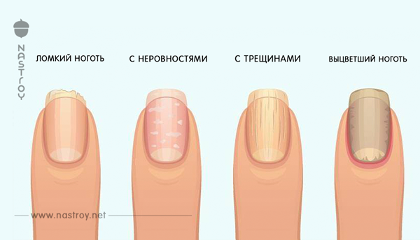 То, о чем ваши ногти предупреждают вас!