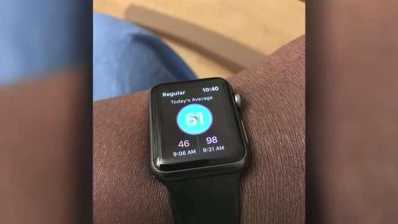 Apple Watch спас свою владелицу, предупредив серьезное заболевание!