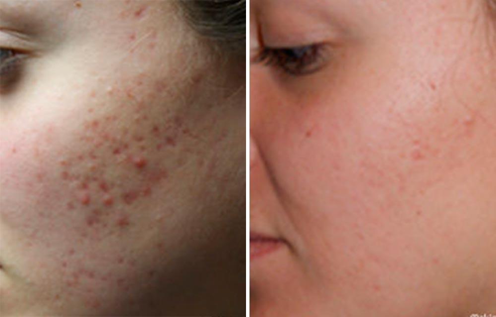 Как избавиться от рубцов на лице после угревой сыпи!