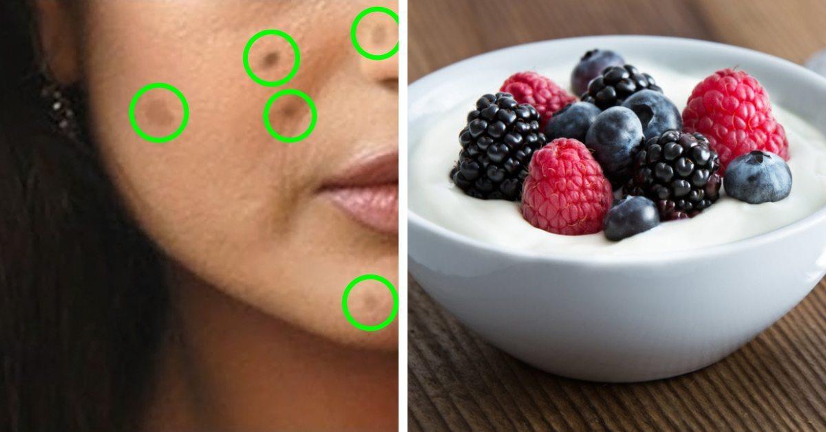 5 природных способов лечения этих незыблемых темных пятен, известных как гиперпигментация!