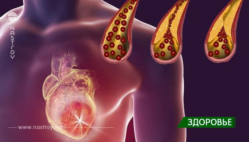 10+ продуктов, которые вы должны ежедневно есть для очищения артерий!