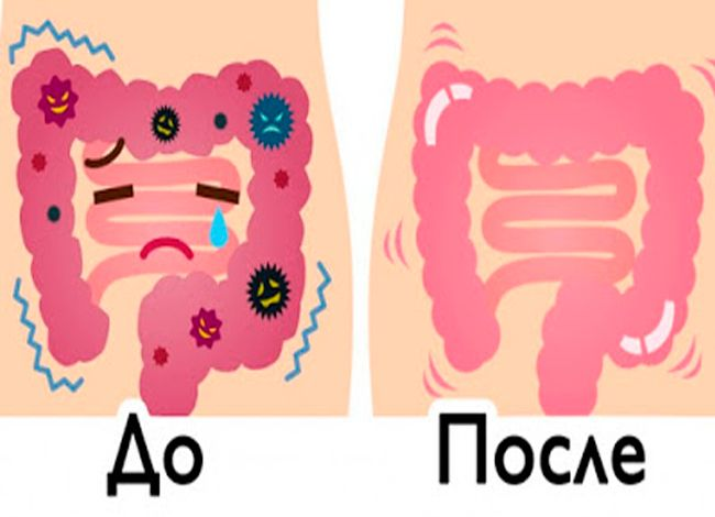 Эти 2 ингредиента просто смоют килограммы отходов из вашего кишечника!