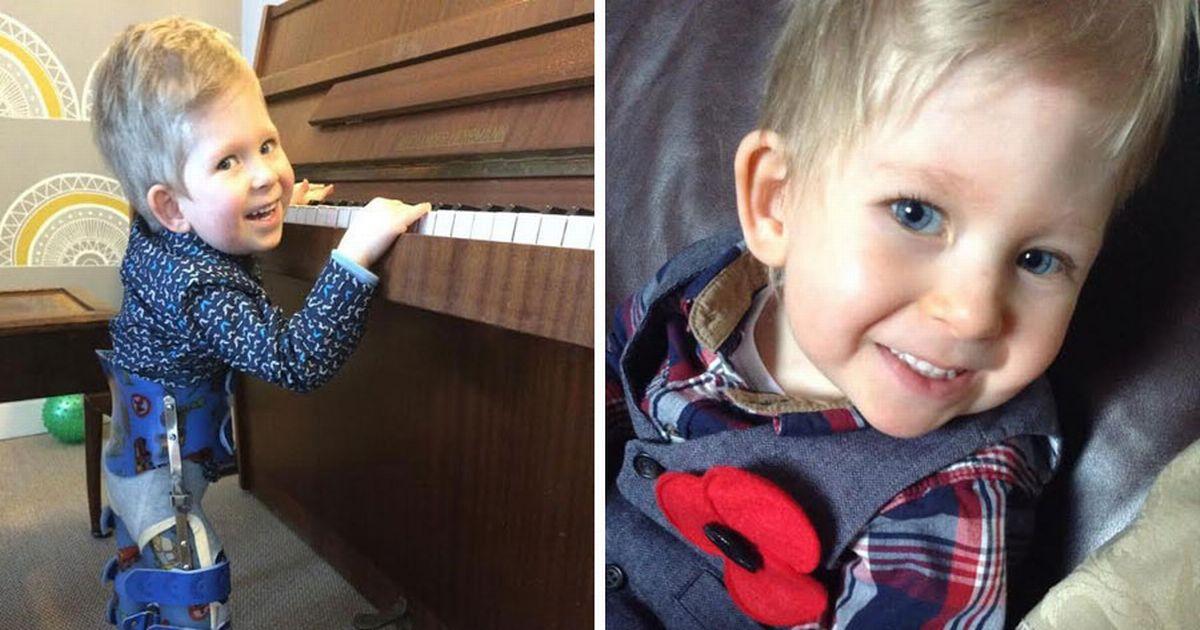 Родившийся без мозга мальчик почти поправился к четырем годам!