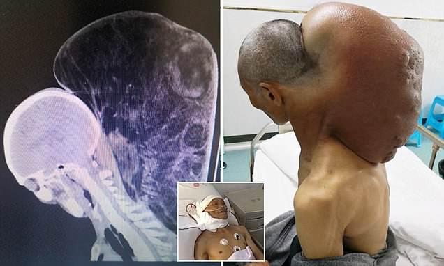 Китаец 47 лет  выращивал  на своей шее 15 килограммовую опухоль!