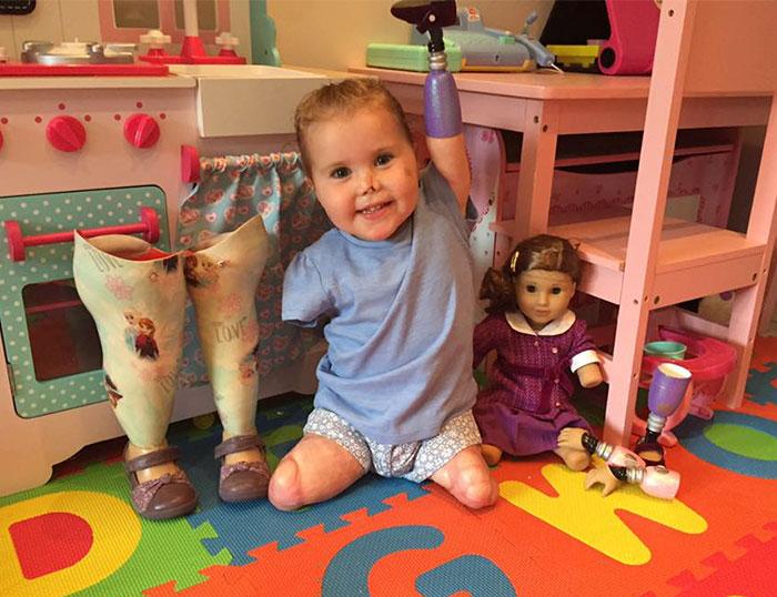 Двухлетняя девочка получила куклу-ампутанта, выглядящую так, как и она сама