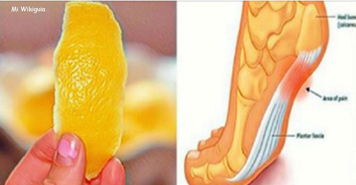 Лимонная цедра может навсегда избавить вас от боли в суставах!