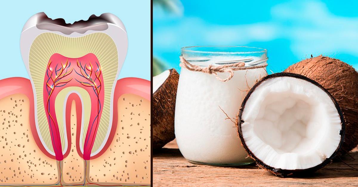 Вот как предотвратить кариес с помощью простого кокосового масла!