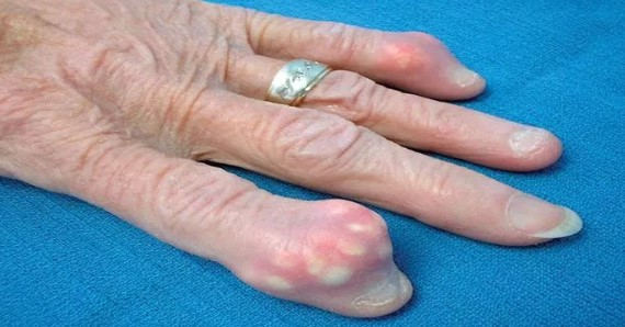 Как устранить кристаллизацию мочевой кислоты в организме и излечить боль в суставах при подагре!