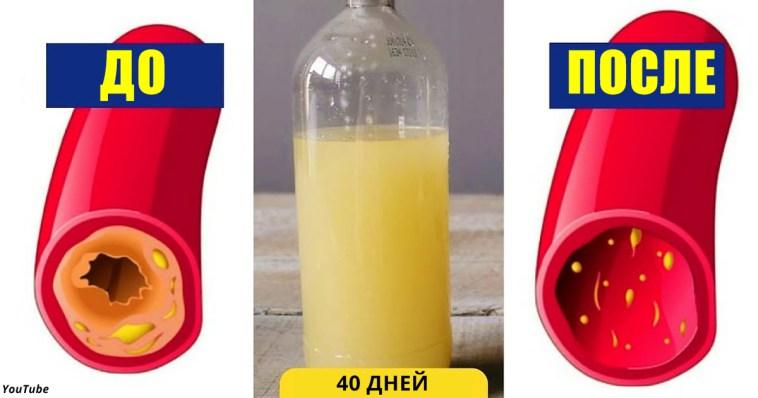 Вот как вычистить сосуды от холестерина за 40 дней без единого лекарства!