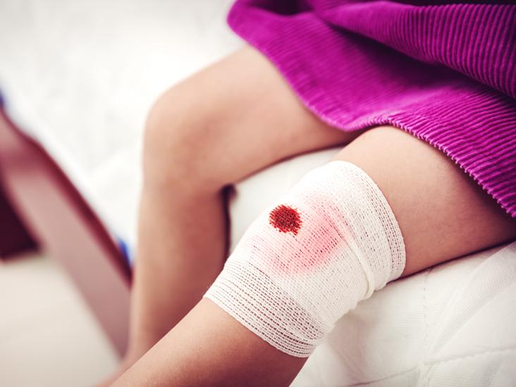 АЧТВ - что это такое в анализе крови?