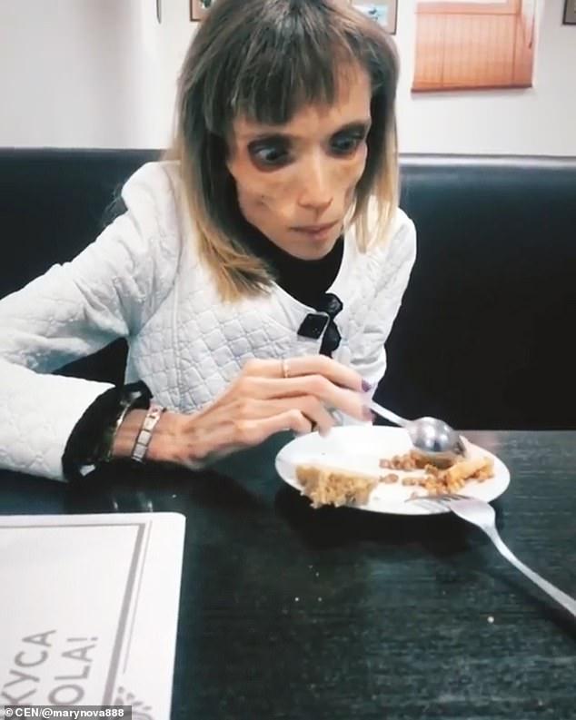 Ей 26 и она весит 17 кг. Кристина Карягина хочет в кино, но врачи дают ей всего год