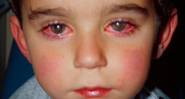 Мальчик потерял 75% зрения! Игрушка, которая приводит к слепоте! Вы должны это знать!