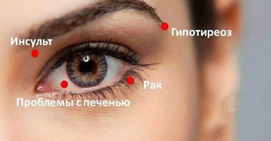 8 сигналов, которые подают ваши глаза, предупреждая о проблемах в организме!