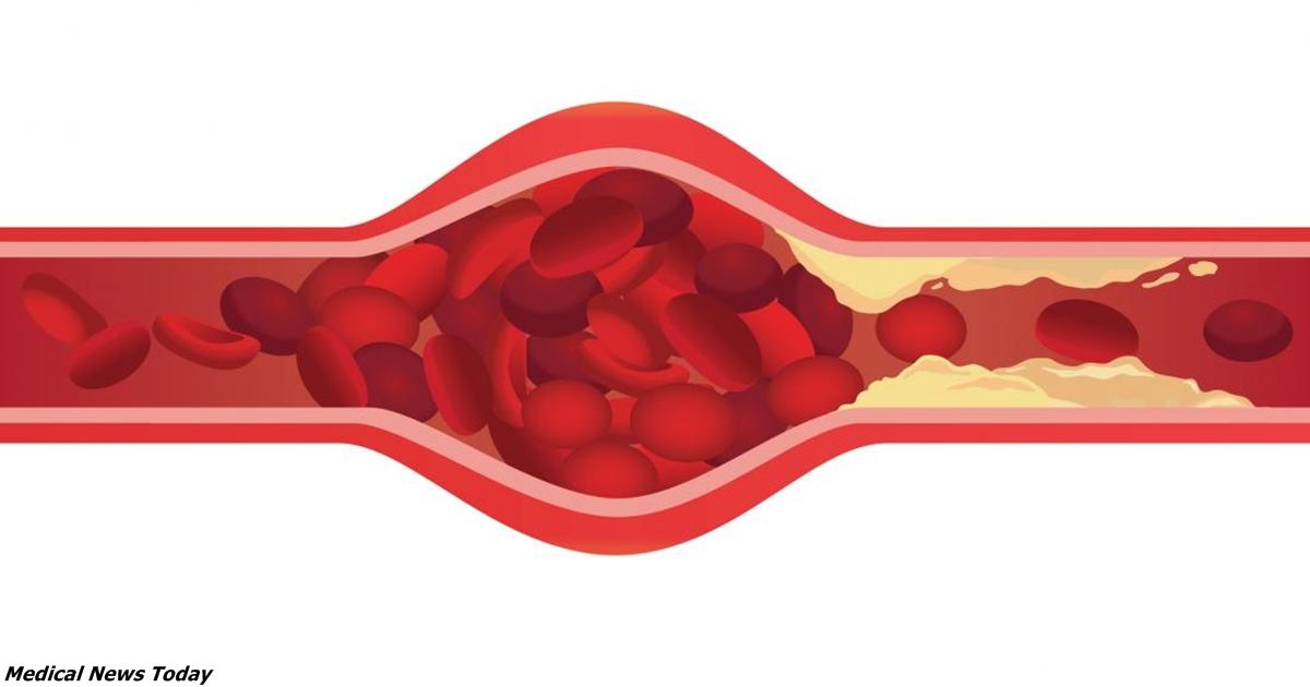 Можно ли избавиться от закупорки артерий? Вот что наука говорит сейчас