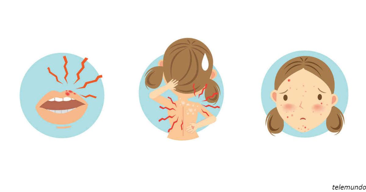 21 сигнал, который подает ваше тело, чтобы вы поняли: стресса стало слишком много