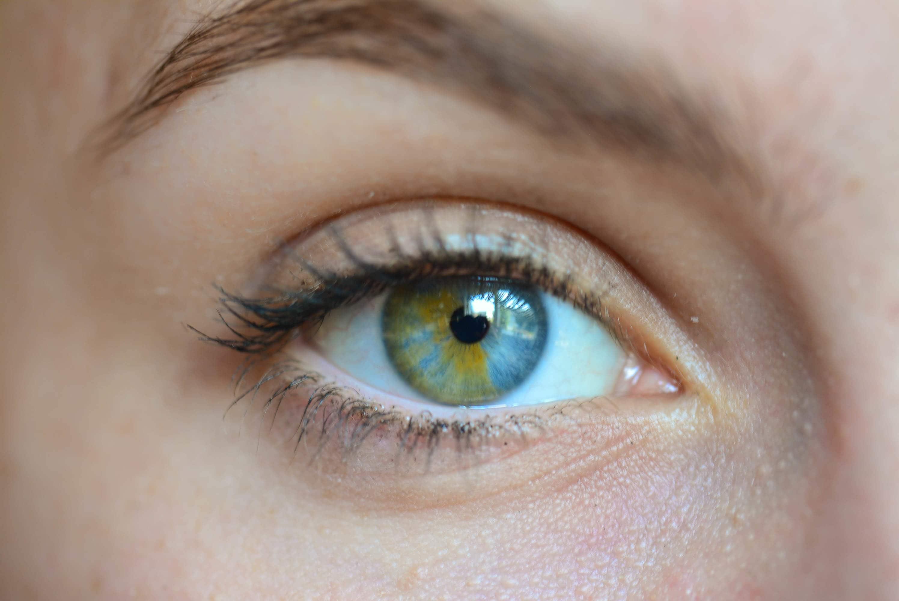 от чего разным цветом глаза картинки чтобы условия
