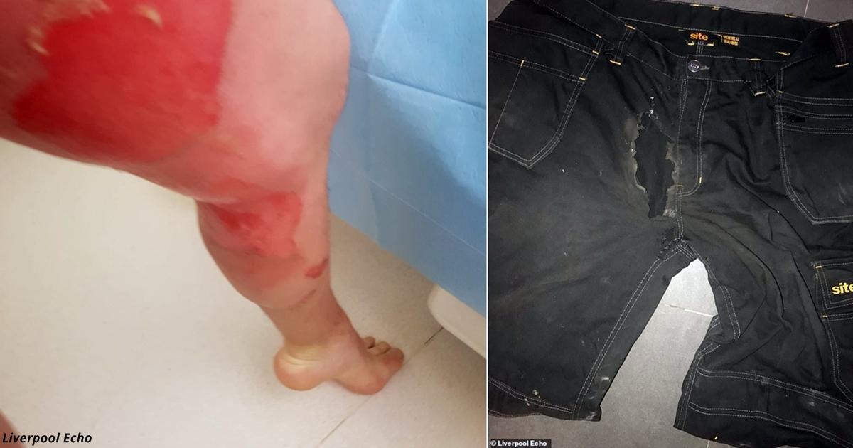 Мужик чуть не лишился достоинств после того, как в его кармане взорвалась электронная сигарета