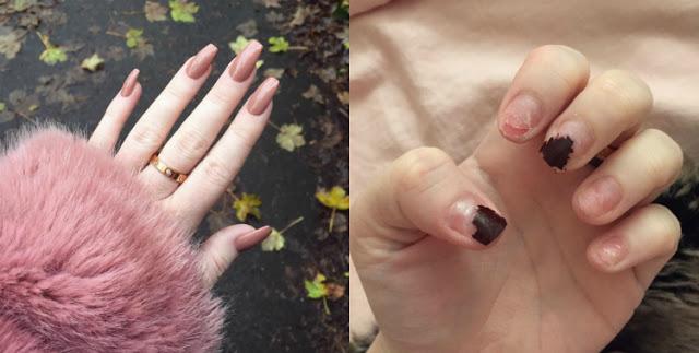 Вот что будет, если 6 лет подряд ходить с акриловыми ногтями. Последствия ужасают