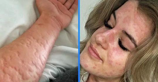 21-летння девушка страдает очень редкой болезнью — аллергией на холод