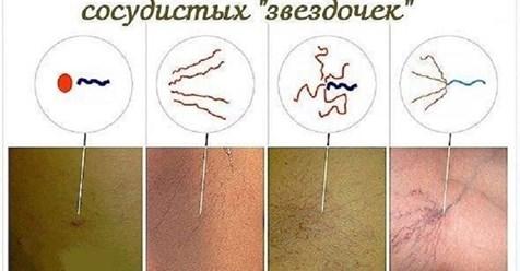 Сосудистые «звездочки» на коже (телеангиоэктазии). Лечение народными средствами.