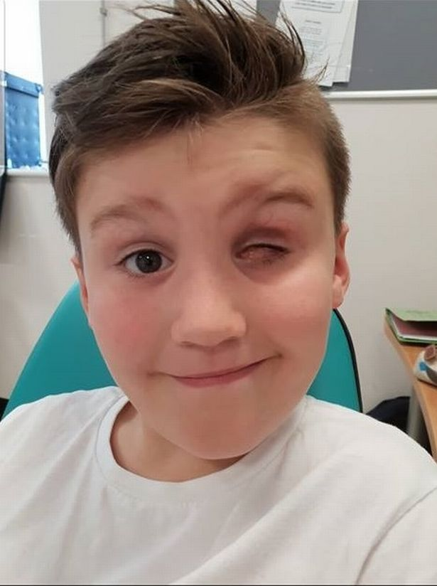 9-летний мальчик лишился глаза из-за игрушки, которую сейчас хотят все дети