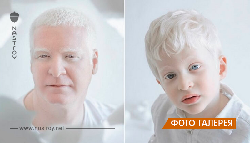 Фарфоровая красота: 13 фотографий «белоснежных» людей, которые кажутся очаровательными пришельцами