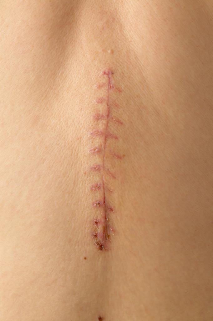 Больно ли снимать швы? Особенности процедуры, рекомендации врачей