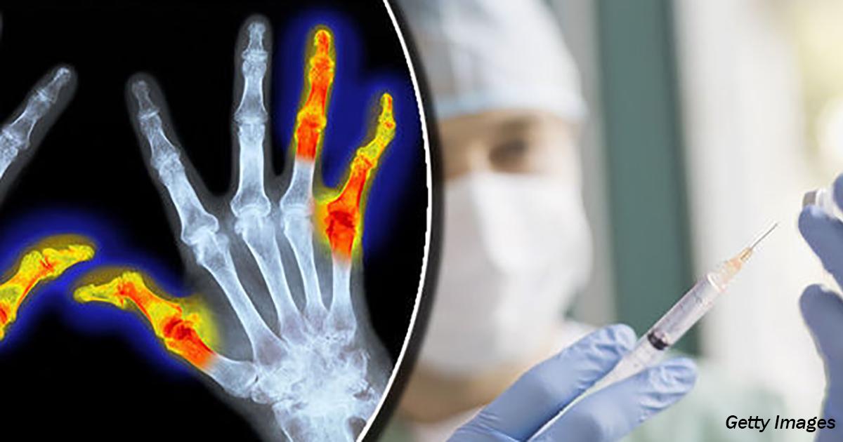 Надежда для миллионов: ученые нашли ″вакцину″ от артрита