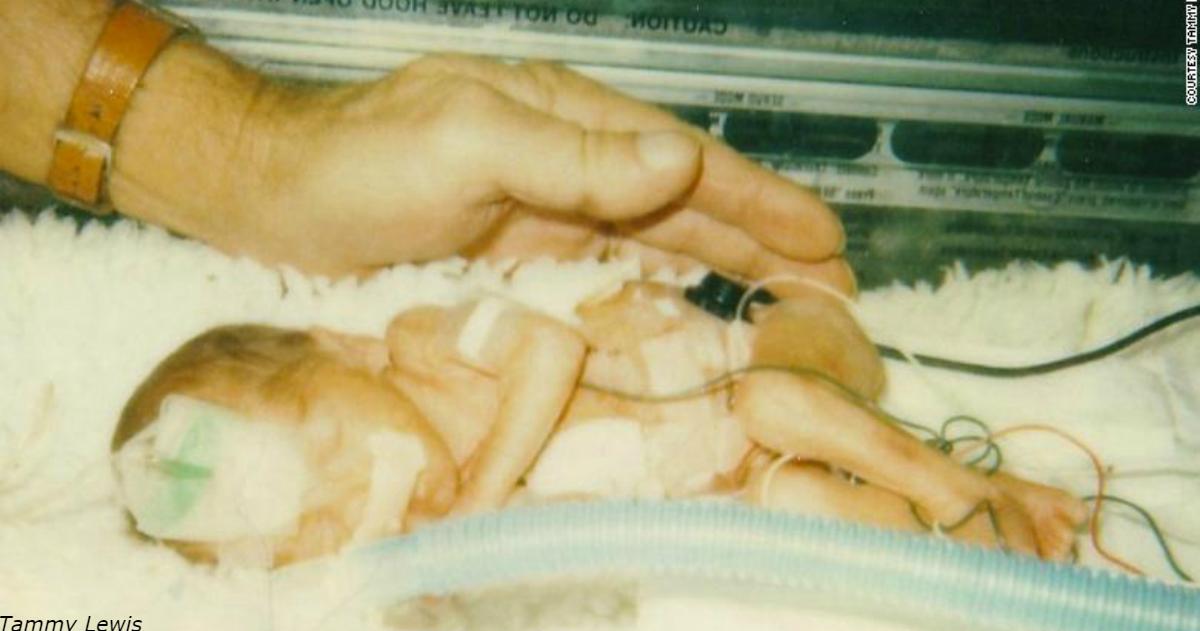 Когда то она была самым маленьким ребенком, рожденным в Техасе. Теперь она   врач