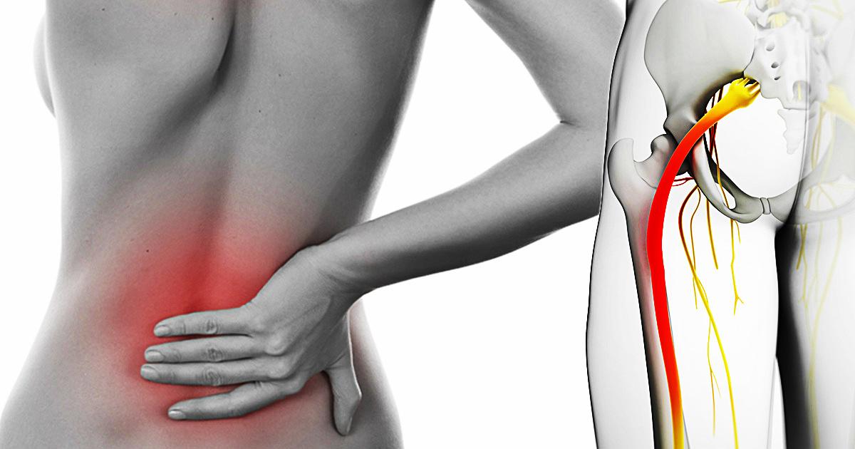 Вот 6 растяжек, чтобы забыть о боли седалищного нерва