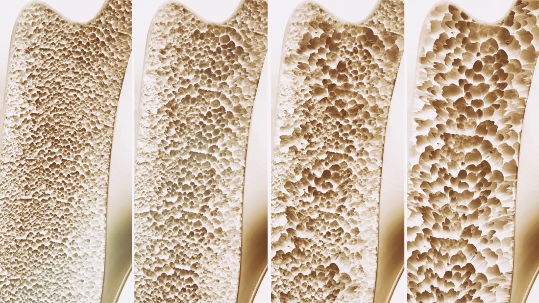 Большинство лекарств от остеопороза не помогают костям. Это – помогает
