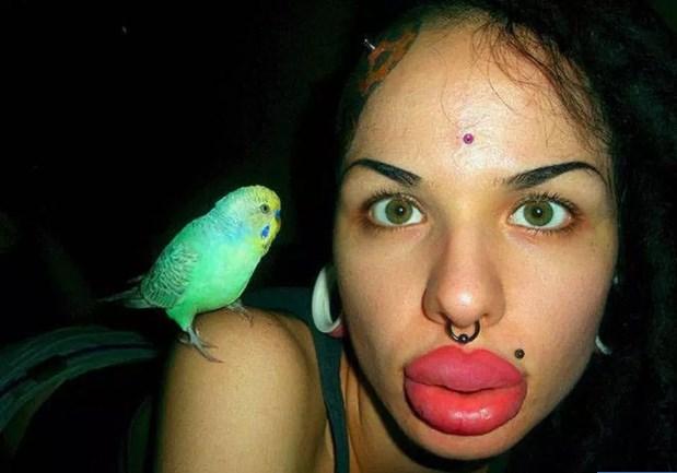 10 раз, когда кто-то сделал себе ″красивые губы″, хотя больше похоже на диагноз