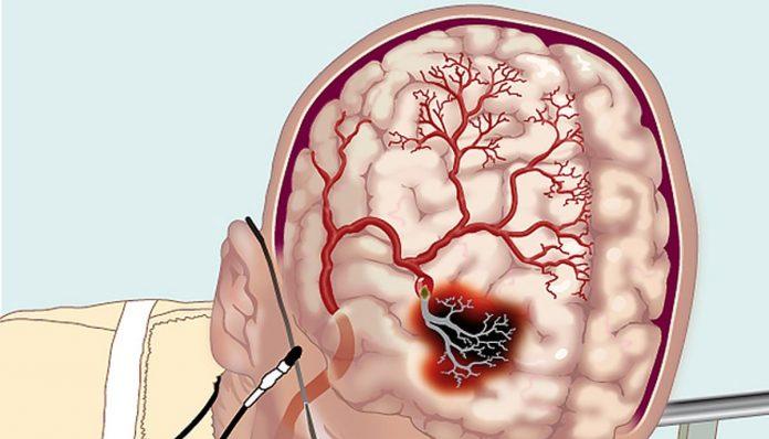 Как улучшить мозговое кровообращение с помощью народных средств?