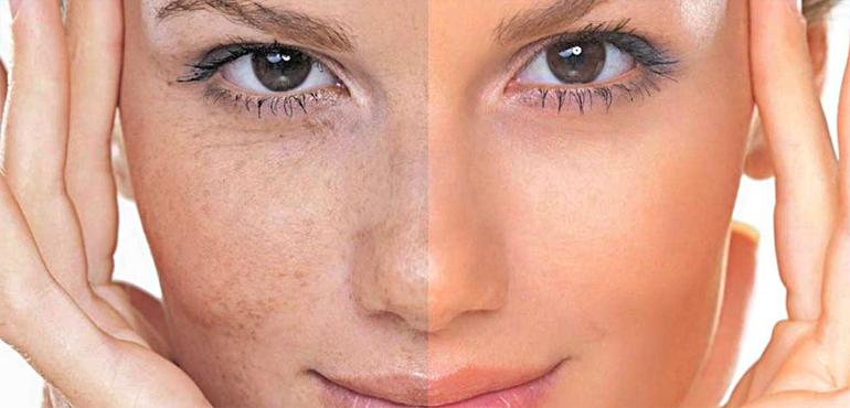 Пигментные пятна на лице: оставлять или пытаться избавиться?