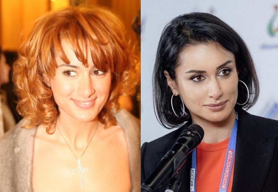 Из милашек - в хищницы: российские звезды до и после пластики