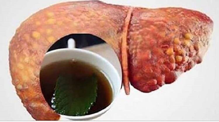 Напиток, который очищает печень и сжигает брюшной жир