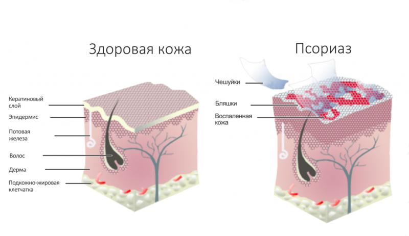 Псориаз: 8 назначений для борьбы с болезнью