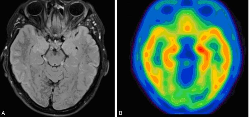 ПЭТ КТ головного мозга: понятие, показания и места проведения
