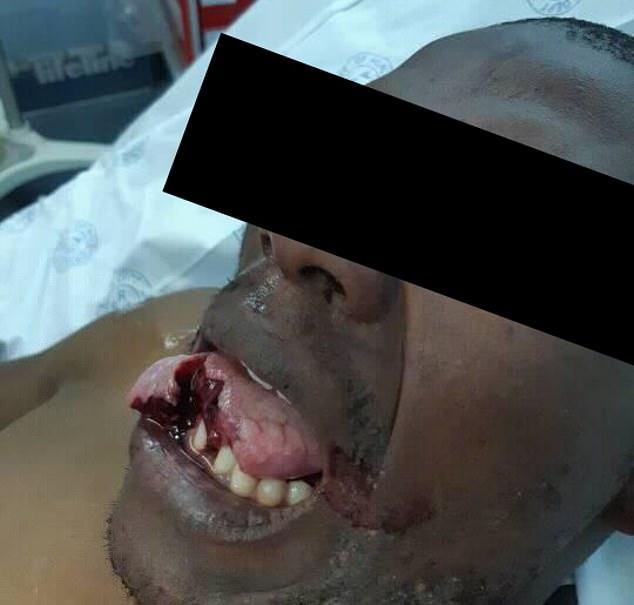 Женщина-доктор откусила язык напавшему на неё во время отдыха пациенту