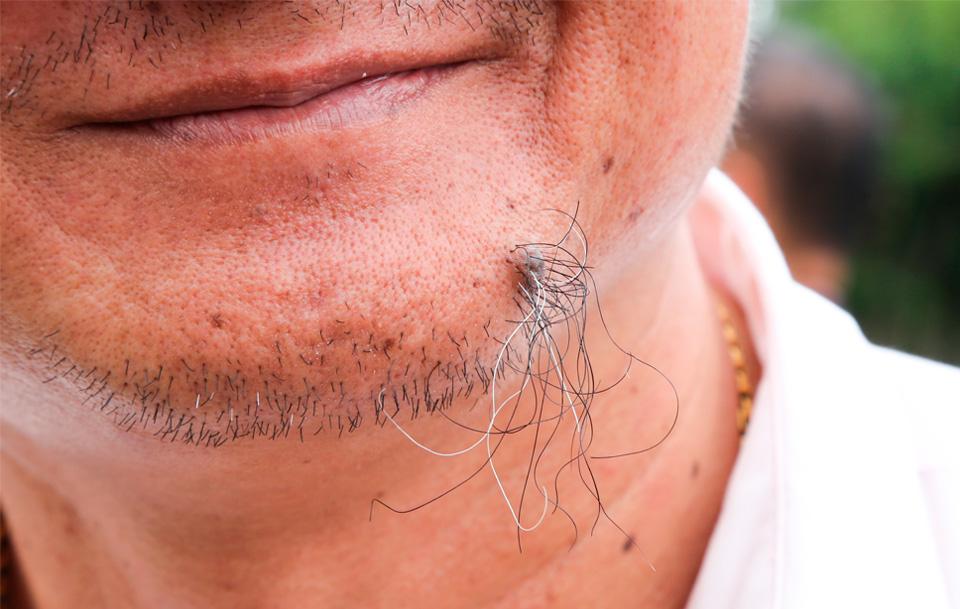 Волосатые родинки: отчего они появляются и есть ли повод для беспокойства
