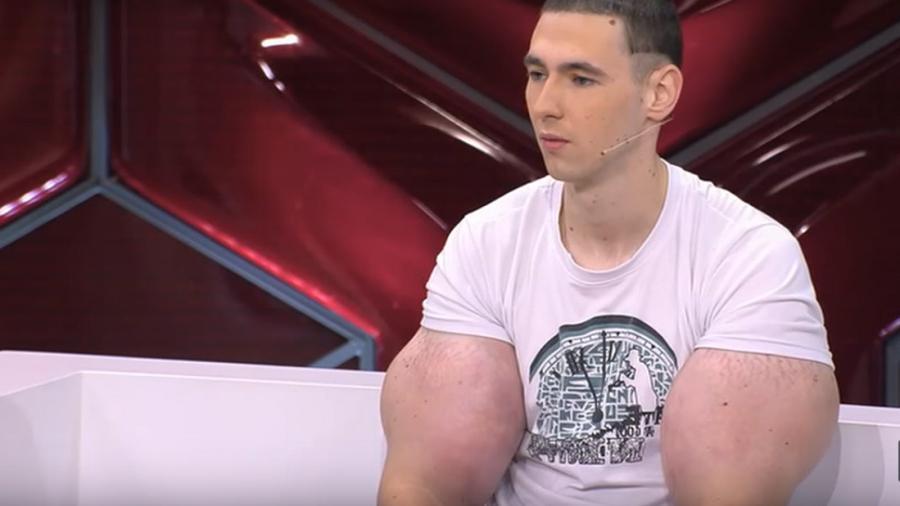 Кирилла Терешина по прозвищу «Руки-Базуки» прооперировали в московской больнице