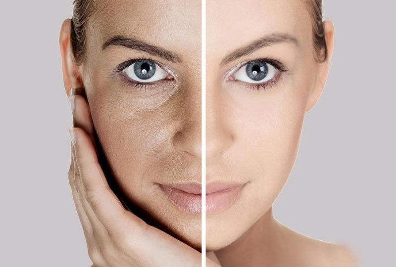 Чтобы распрощаться с морщинами и обвисшей кожей на лице, я каждое утро умываюсь самодельным средством из двух простых ингредиентов