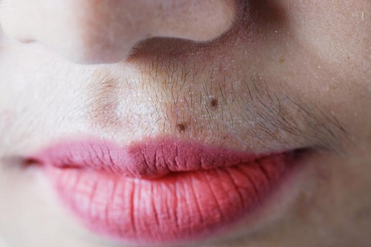 Усики у женщины говорят о том, что у нее крепкое здоровье. Ученые доказали, что чрезмерное количество волос в разных частях тела говорит о том, у женщины крепкий и здоровый организм